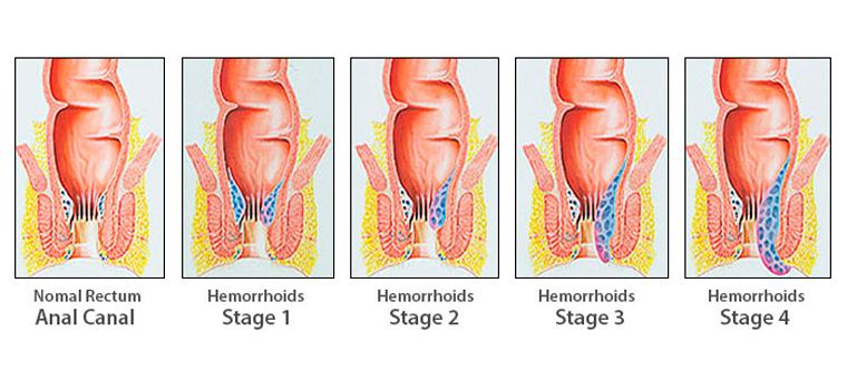 Gli stadi o livelli di gravità delle emorroidi esterne interne e prolassate